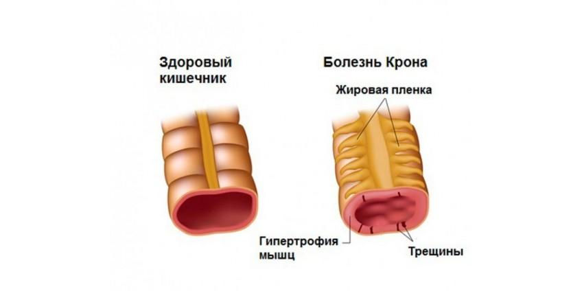 Аутоиммунные заболевания кишечника