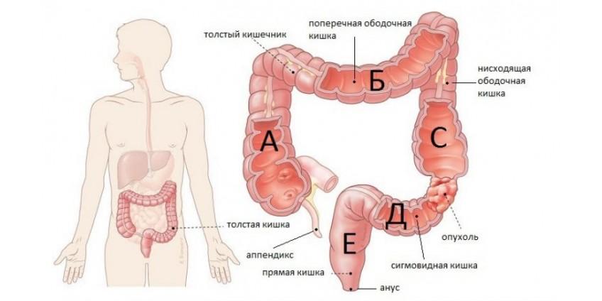 Что такое болезнь крона кишечника