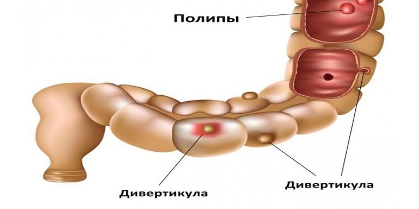 Что такое дивертикулярная болезнь кишечника