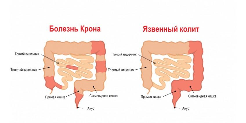Хронические заболевания кишечника