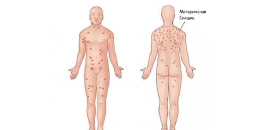 Пятна на коже при заболеваниях кишечника